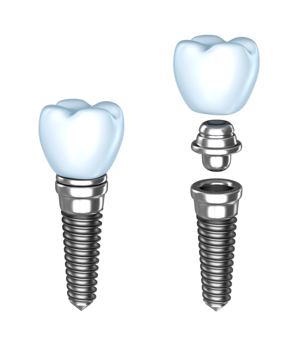 aperfeiçoamento em implantes-006