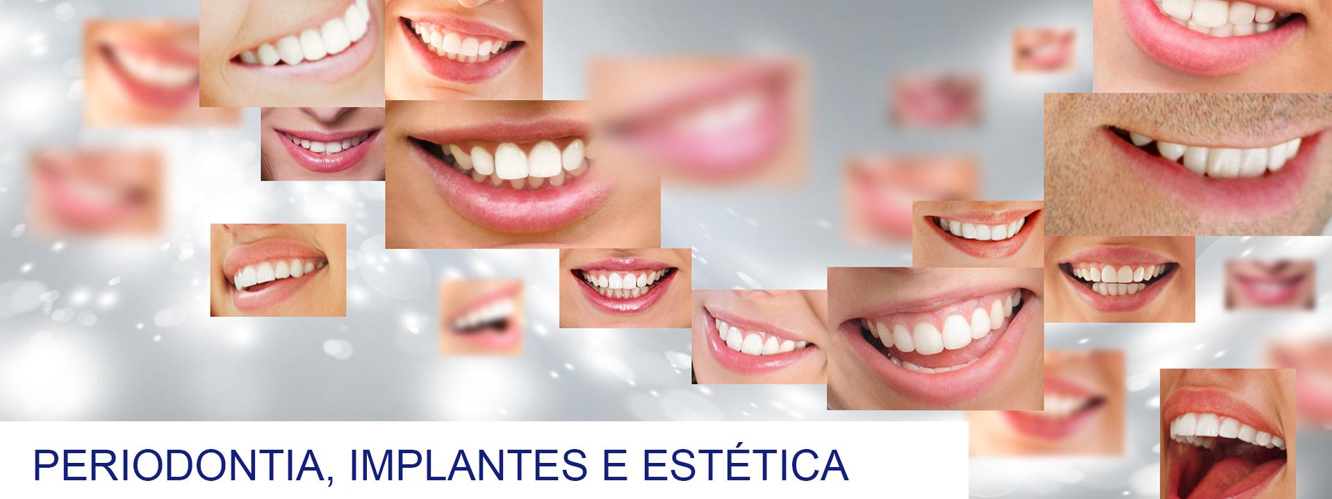 Curso de Periodontia, implantodontia e estética