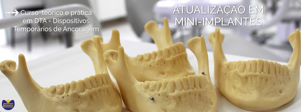 Atualização em Mini-Implantes